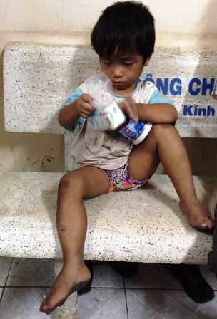 Tìm thấy cháu bé 3 tuổi bị ép đi ăn xin, bạo hành 2