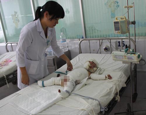Thương cảm hai bé bị bỏng nặng do chập điện 1