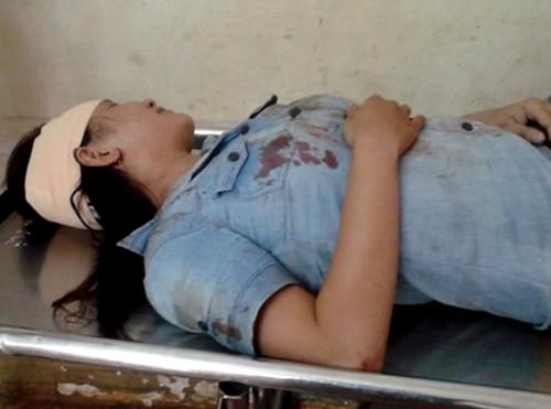 Chặn đầu ngăn xe 'dù' cướp khách, cô gái bị cuốn vào gầm ôtô 2