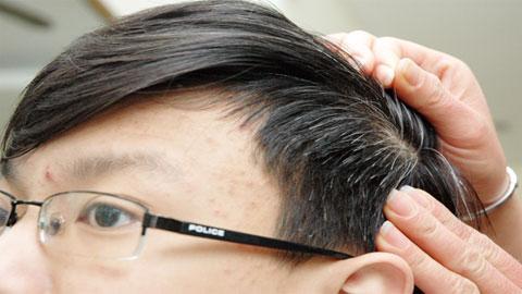 Món ăn bài thuốc chữa chứng tóc bạc sớm 1