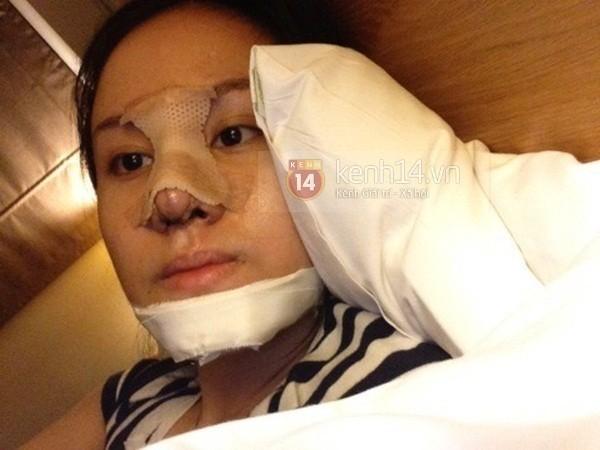 'Bà Tưng' biến thành Can Lộ Lộ sau khi phẫu thuật thẩm mỹ 4