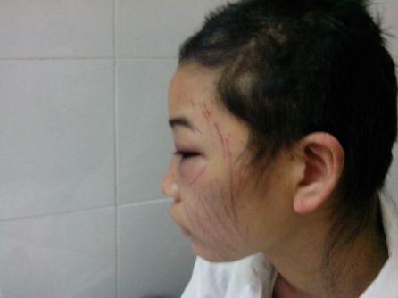 Chồng bắt vợ tự cắt tóc, rạch mặt vì... tin nhắn lạ 1