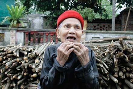 Hà Nội: Cụ ông 90 tuổi mọc lại cả hàm răng 1