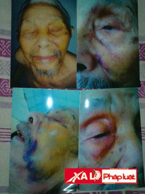 Con gái kiện bố mẹ bất hiếu hành hạ, đánh đập ông nội 3