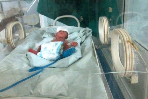 Cứu sống bé trai sinh non nặng 0,5kg 2