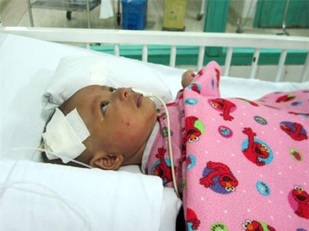 Xót xa bé 3 tháng tuổi chấn thương não vì cha ném xuống đường 2