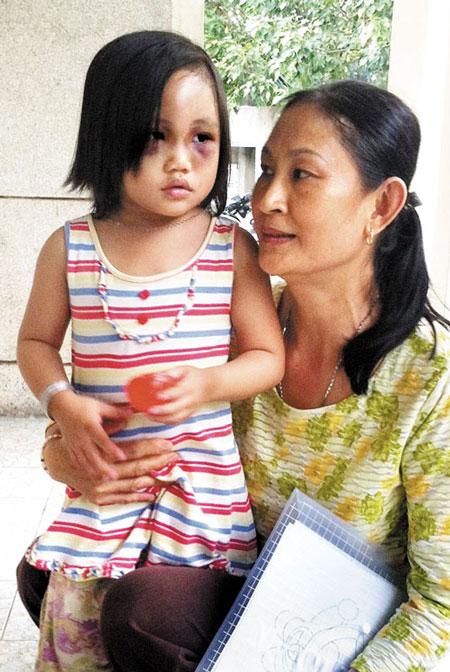 Bé gái 5 tuổi bị cha hành hạ tàn nhẫn 1