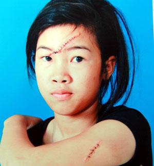 Nữ sinh lớp 8 bị rạch mặt hội đồng 1