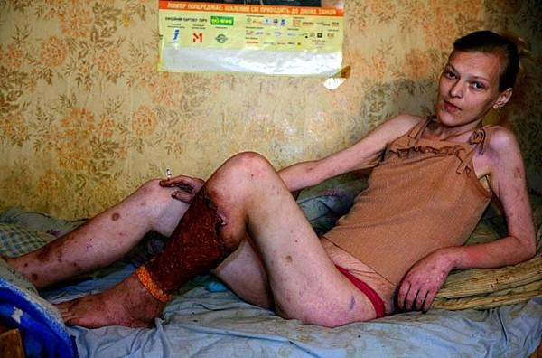 Sự thật rợn người về loại ma túy kinh khủng nhất thế giới 9