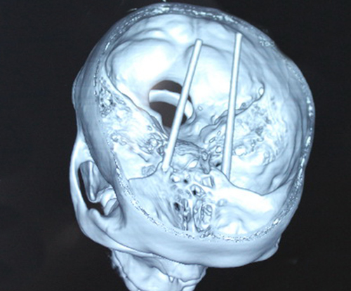 Kinh hãi bệnh nhân bị 2 cây đũa đâm từ mắt vào não 1