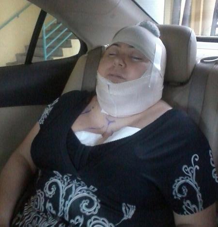 Bà mẹ 2 con chết thảm vì phẫu thuật thẩm mỹ 2