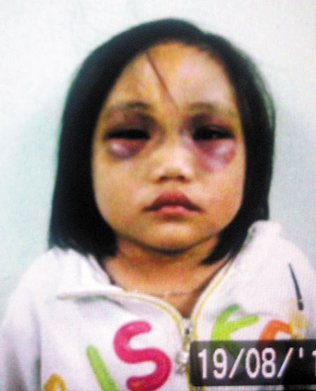 Bé gái 5 tuổi bị cha hành hạ tàn nhẫn 3