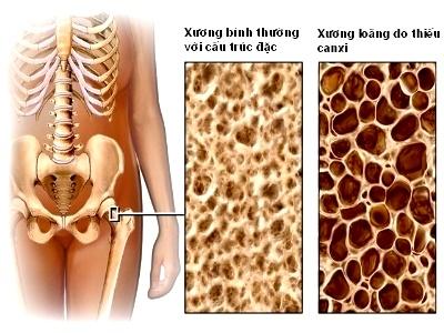 Tuân thủ 5 bước để phòng ngừa loãng xương 1