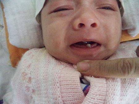 Những đồn đại quanh bé mới sinh đã mọc răng cửa 1