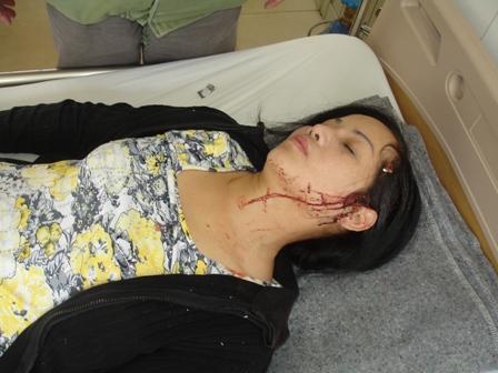 Lâm tặc đánh vỡ đầu nữ giám đốc Cty quản lý bảo vệ rừng 1