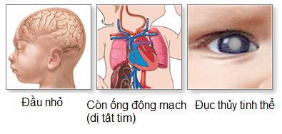 Những điều bạn cần biết về bệnh Rubella 2